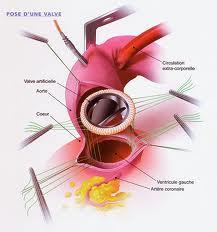 Schéma de l'implantation d'une prothèse aortique